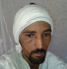 الشاب المعتدي عليه بالضرب محمد ولد محفوظ (السراج)